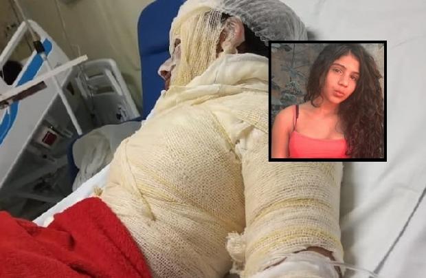 Adolescente sofre queimaduras de 2º grau em acidente com álcool em gel em Cuiabá