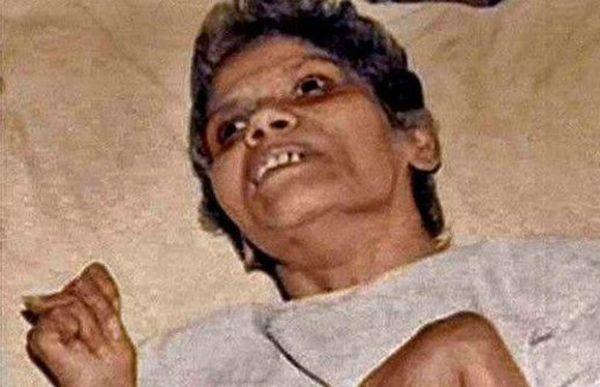 Médicos e enfermeiras do hospital onde Aruna Shanbaug ficou internada eram contra eutanásia